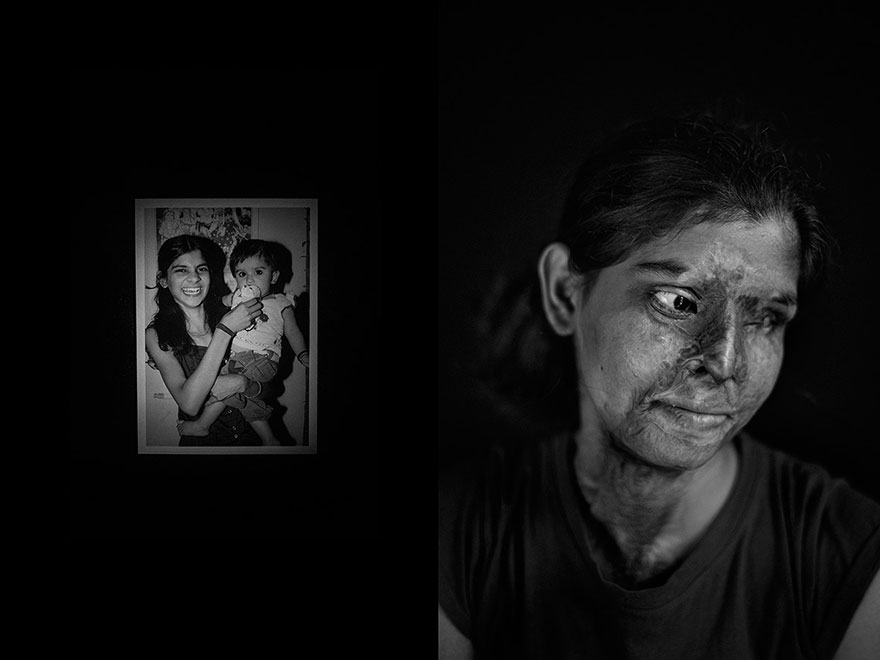 15 acid survivors best photography by jordi pizarro